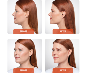 kybella-treatment