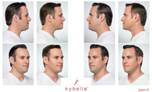 kybella-treatment-men