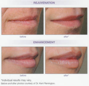 lip-line-reduction