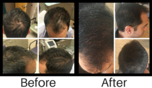 prp-hair-loss-treatment
